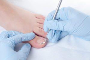 Routine Podiatry Treatments