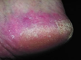 WHAT YOU NEED TO KNOW ABOUT FUNGAL FOOT INFECTIONS