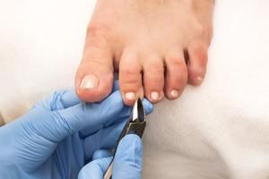 Diabetic Foot Services